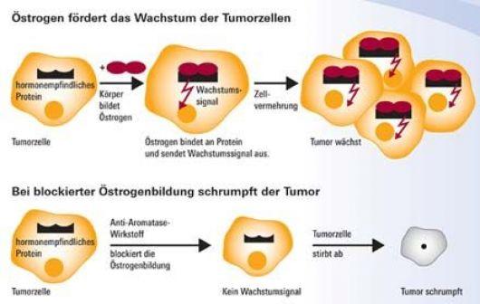 �strogen-Tumorwachstum